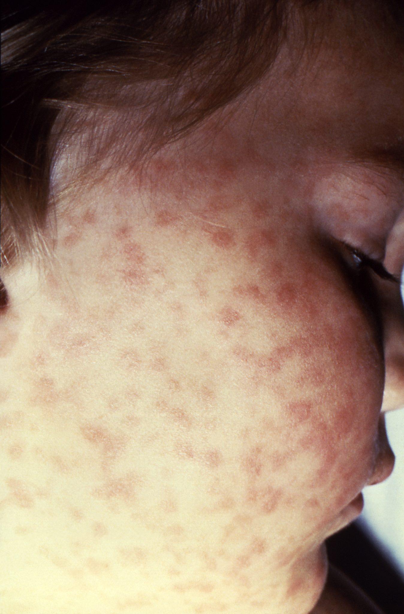 Ticks Tick Borne Illnesses In Alabama Alabama