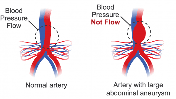 Illustration of a normal artery with blood pressure flow and an Illustration of abnormal artery with blood pressure not flowing well