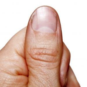 Close-up thumb finger